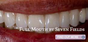 ad-full-mouth