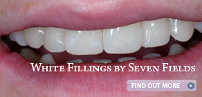 ad-white-fillings