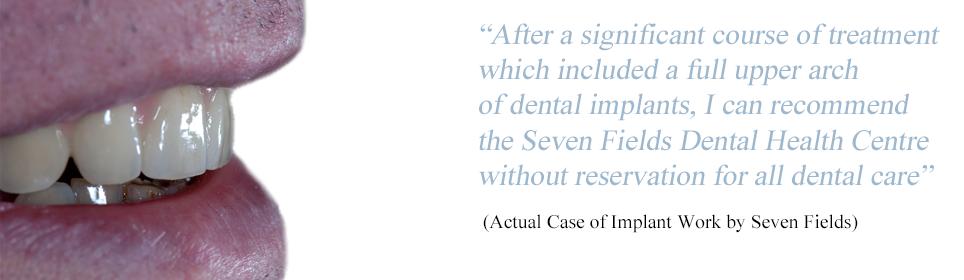 banner-dental-implants