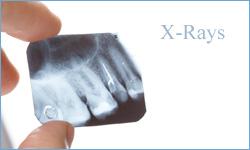 cnt-x-rays